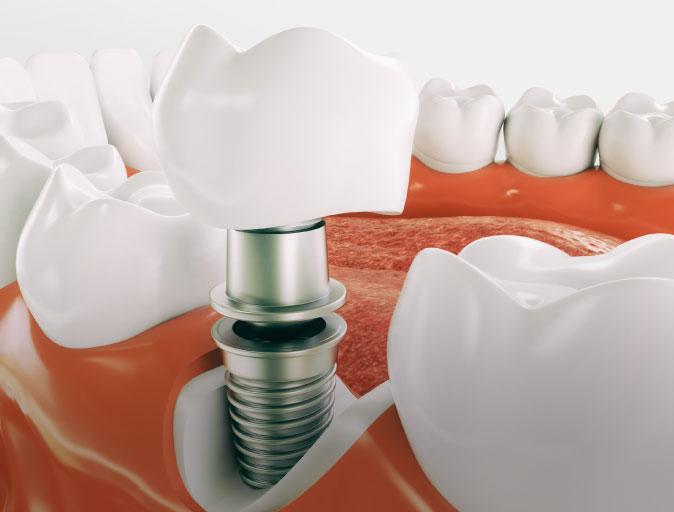 Snoqualmie Dental Implants