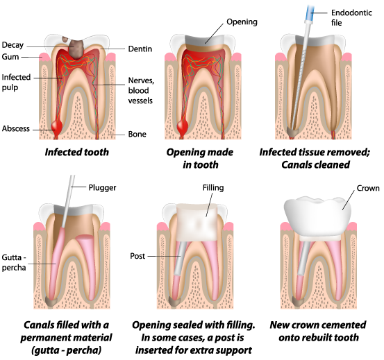 Snoqualmie Root Canals